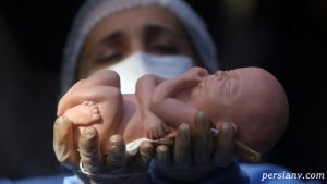 بررسی وضعیت سقط جنین در جهان